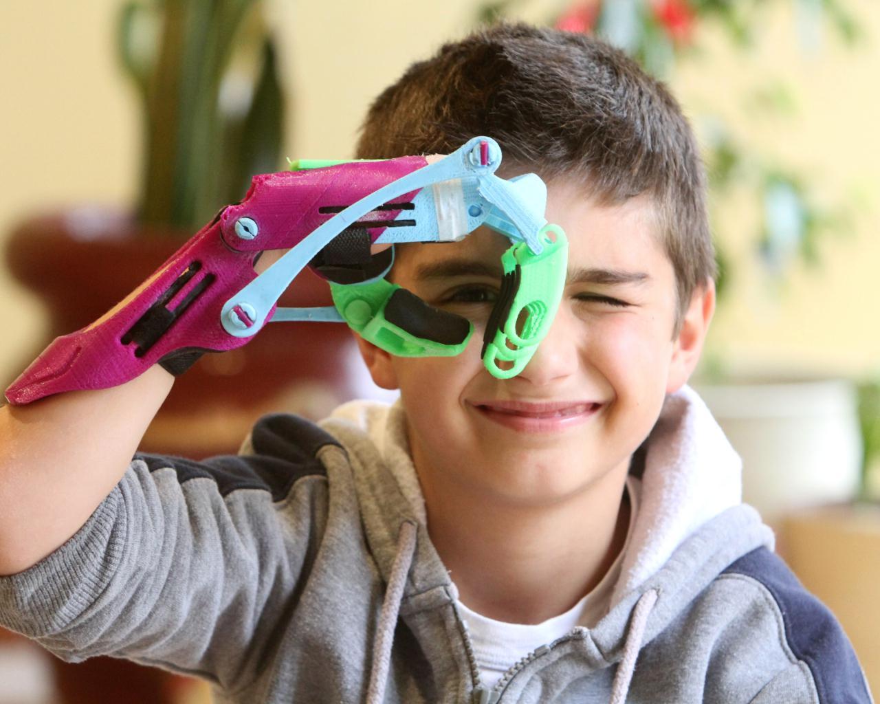 Limbs, el modelo 3D para ayudar a quien le falta una extremidad