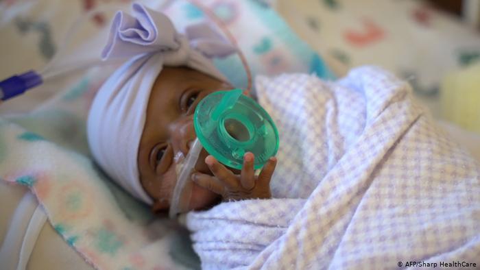 Dan de alta a la bebé 'milagro' que nació pesando menos de un cuarto de kilo