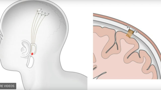 chip-cerebral-elon-musk