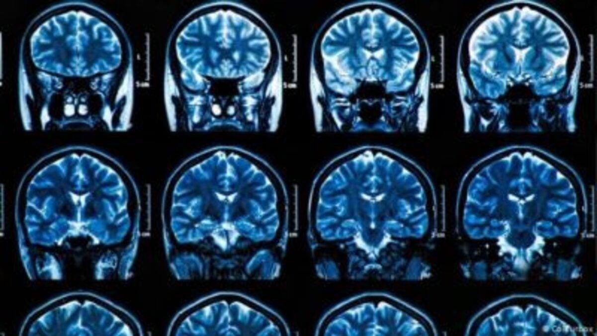 Cerebros de pacientes Covid-19 podrían envejecer 10 años: estudio