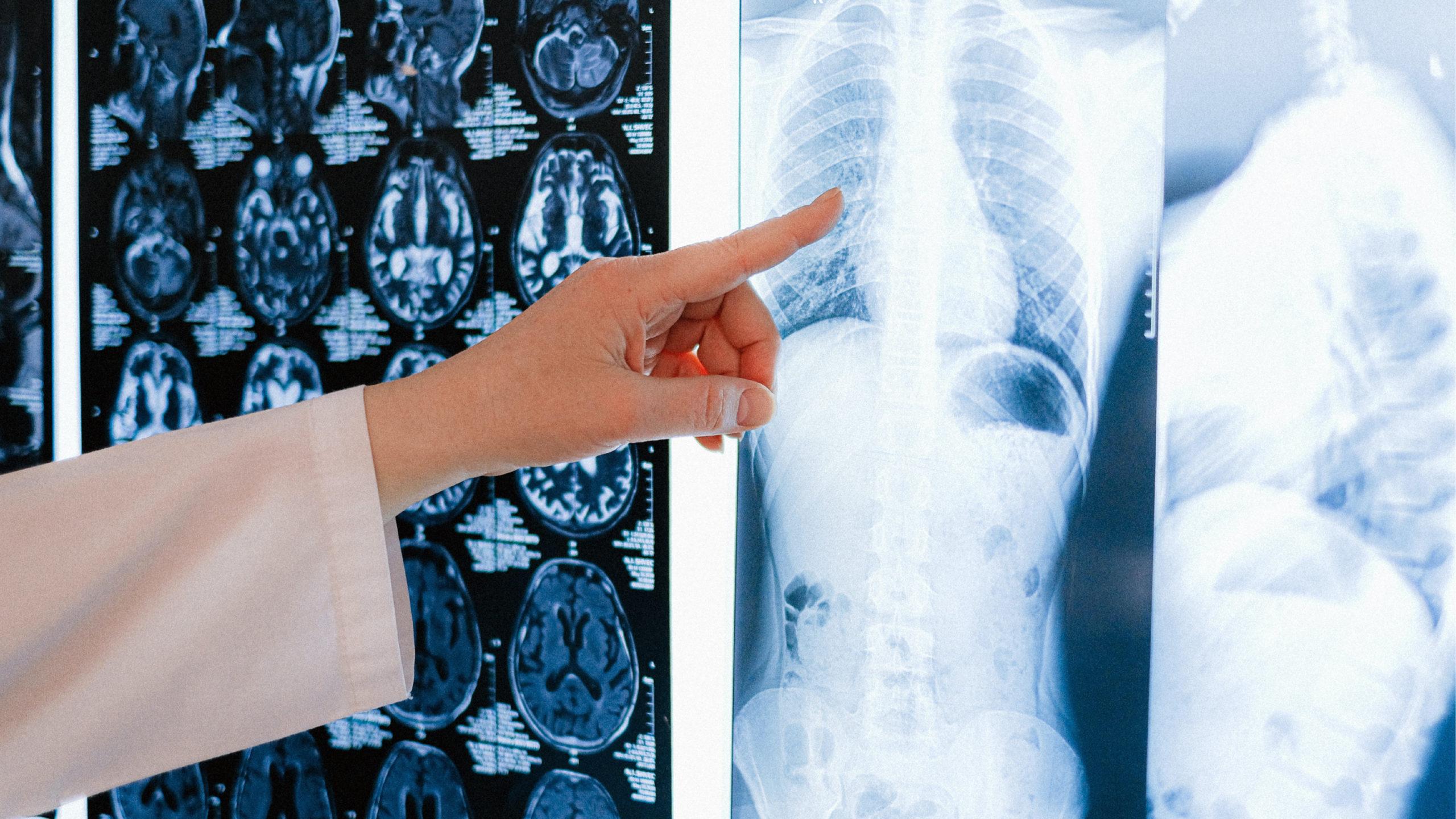Científicos detectan lesiones de corazón en pacientes graves de Covid-19