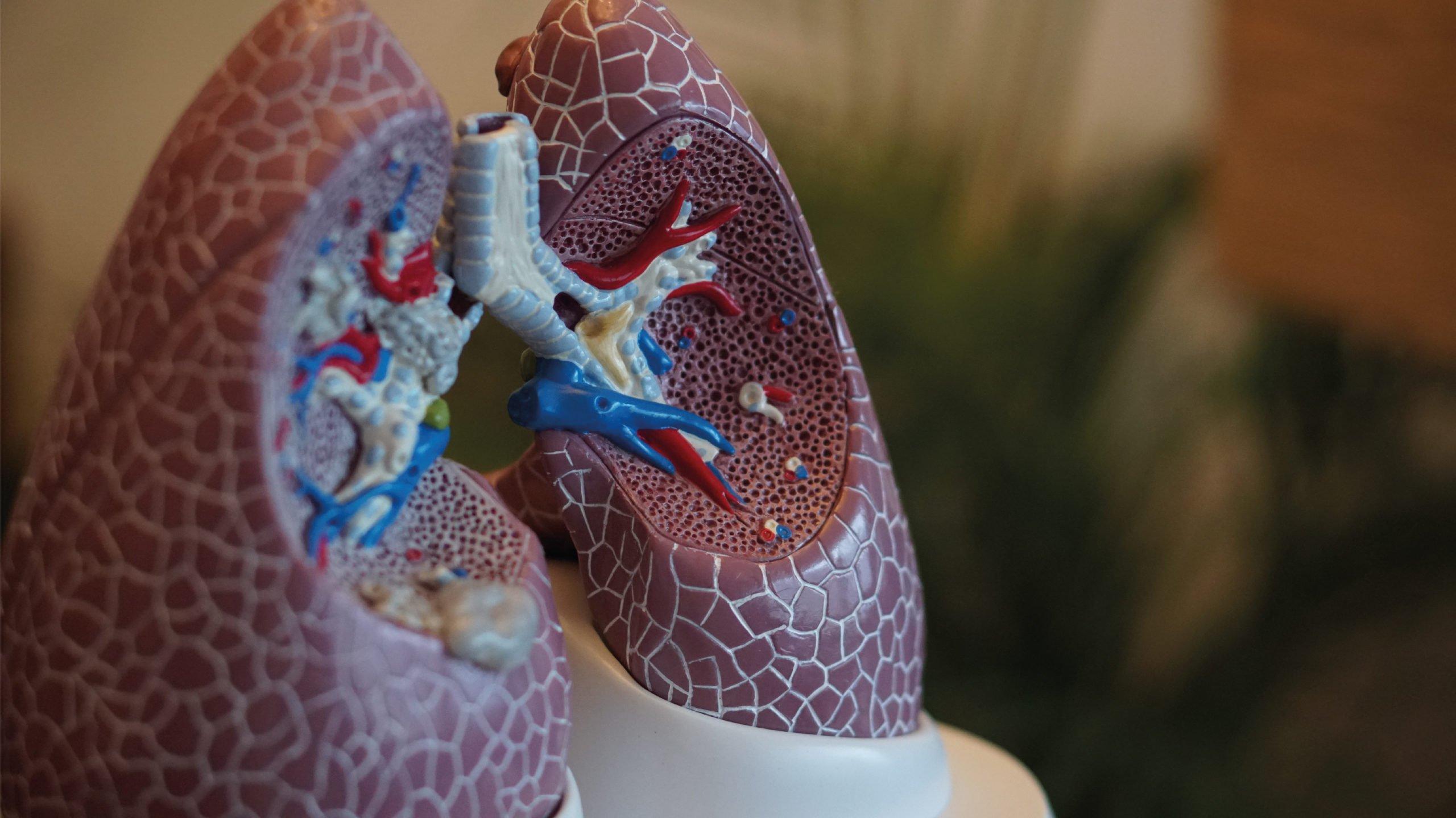 Realizan en Chicago trasplante doble de pulmón 'covid a covid'