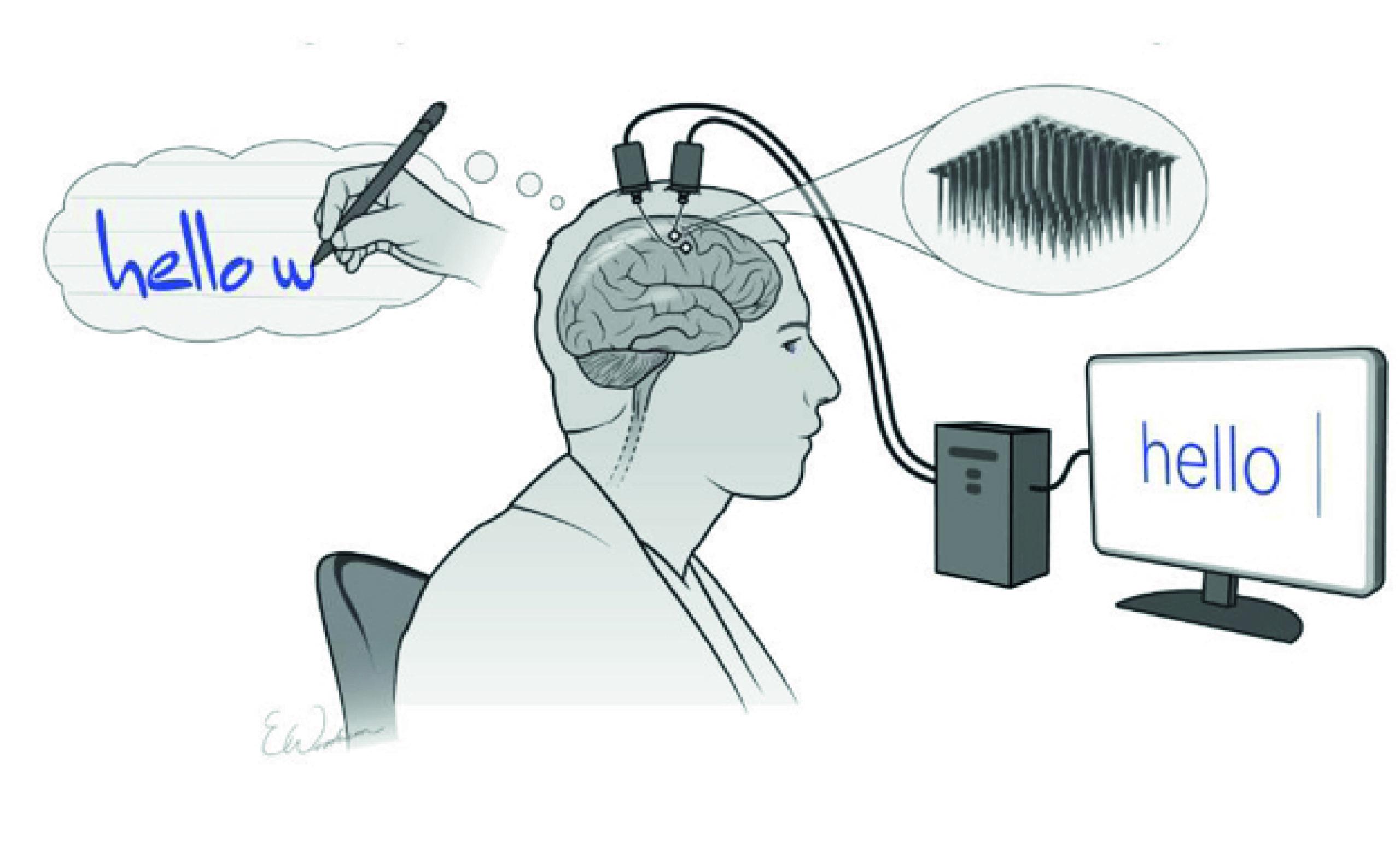 Desarrollan sensor cerebral que permite escribir con solo pensarlo