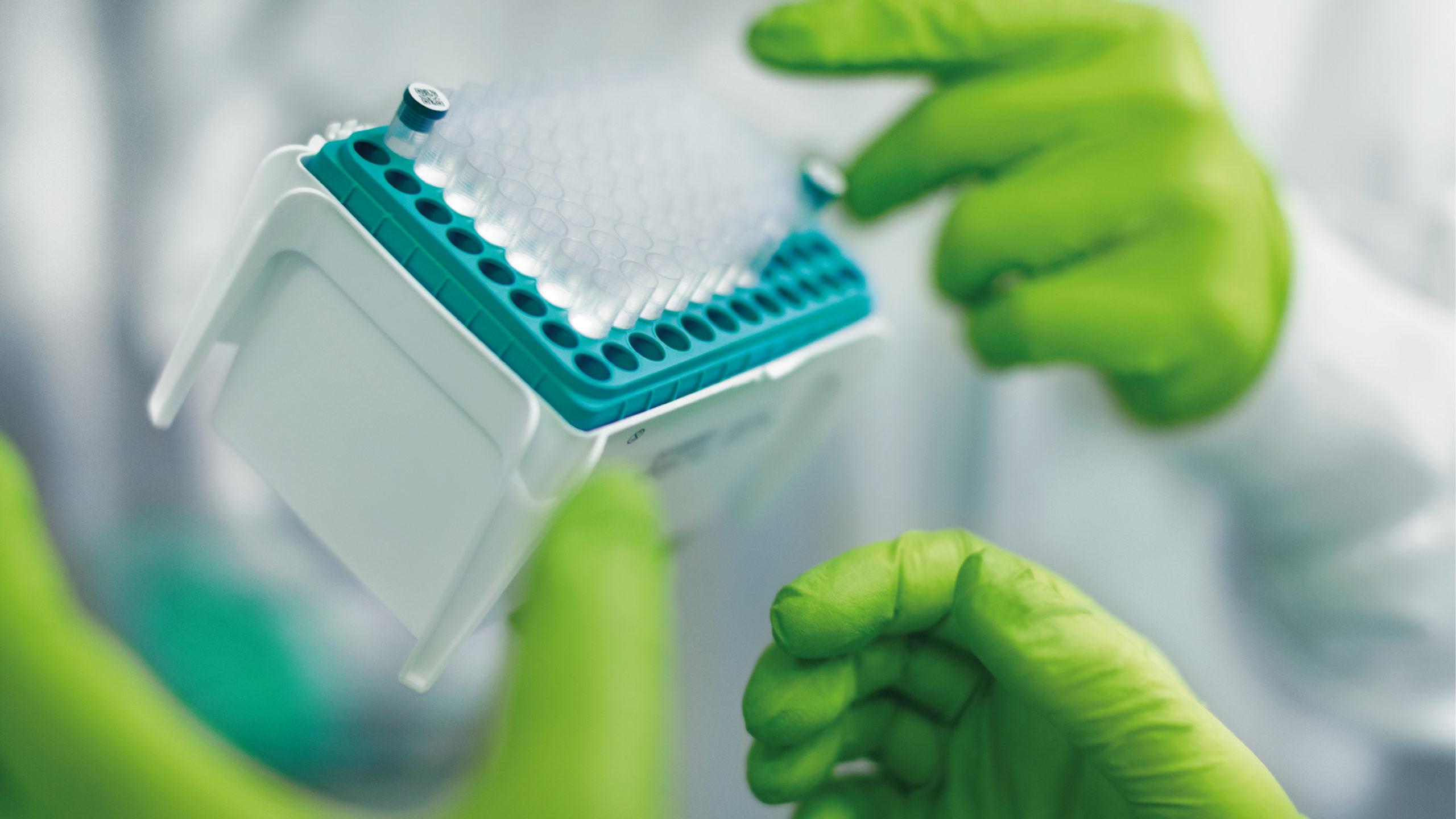 BioNTech obtiene ganancias de 1,372 mdd en primer trimestre gracias a vacunas contra Covid-19
